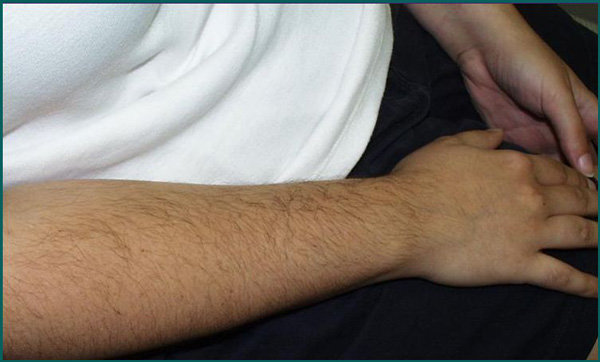 Laser Hair Removal in Orlando Before and After Picture
