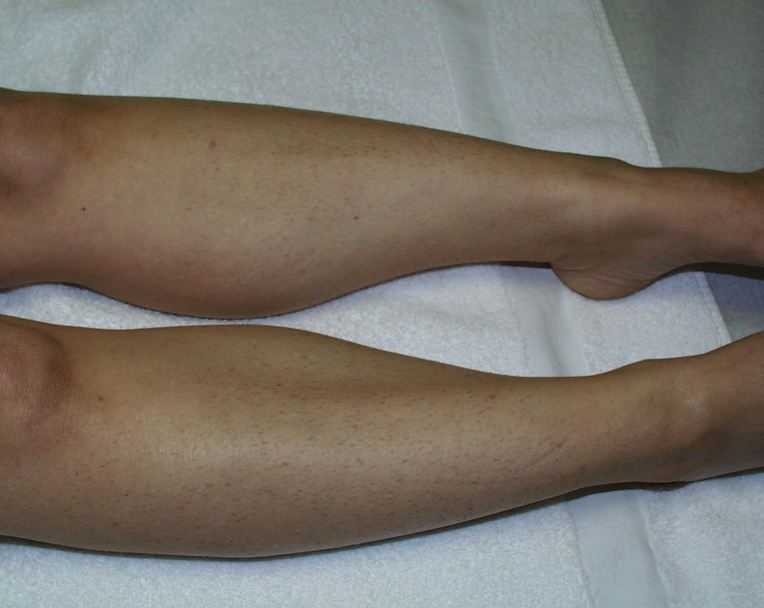 legs before laser hair removal