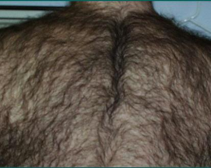 back hair before laser hair removal