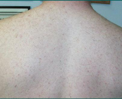 picture of back after laser hair removal