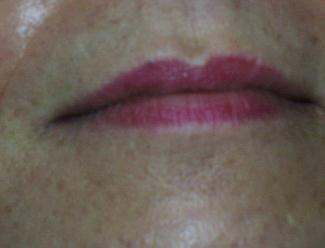 Upper Lip Hair Removal After Pictures - Orlando